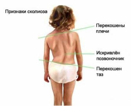 Признаки и симптомы сколиоза