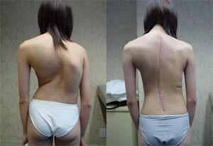 Результат после операции