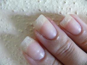 Хрупкость ногтей - один из симптомов остеопороза