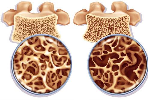Остеопороз в разрезе костной ткани