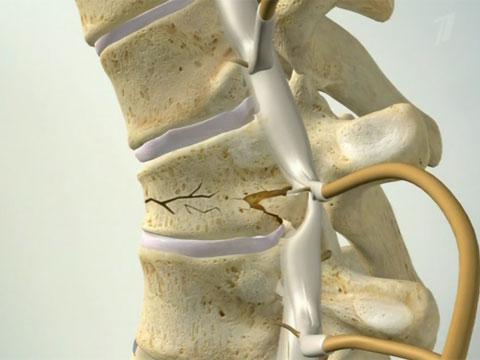 Перелом позвонка при остеопорозе