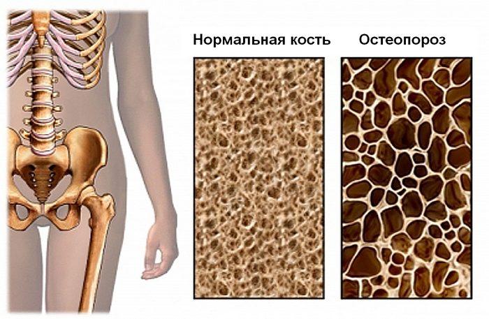 Пораженная остеопорозом кость