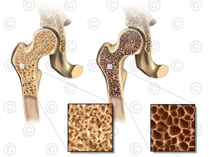 Слева - здоровая кость справа - кость пораженная остеопорозом