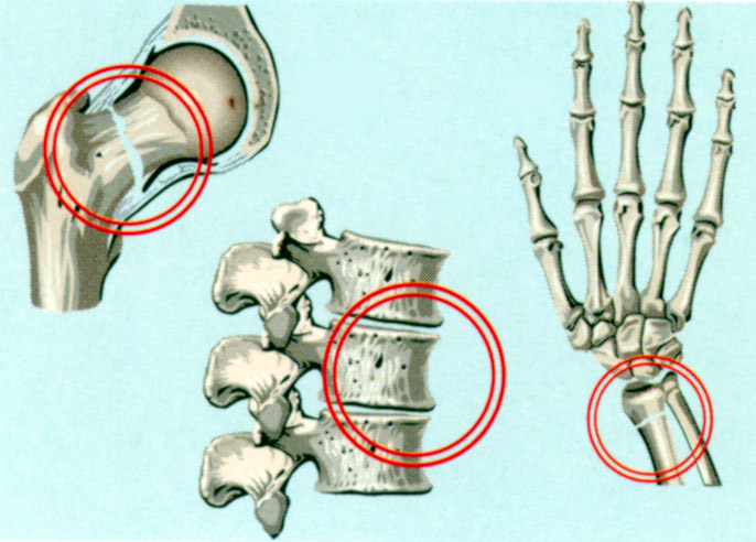 Структура кости при остеопорозе и переломы