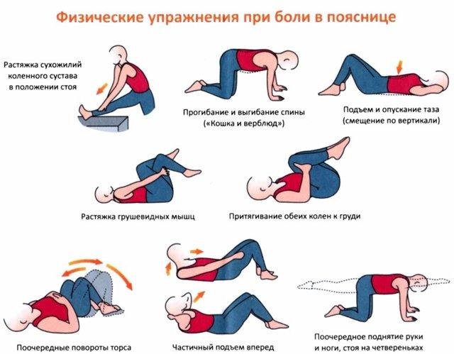 Упражнения при радикулите пояснично-крестцового отдела
