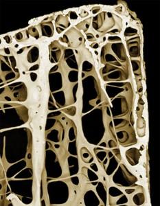 Кость под микроскопомпри остеопорозе