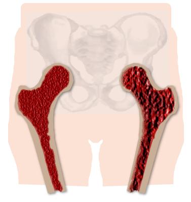 Пример здоровой кости ноги и пораженной остеопорозом