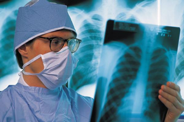 Рентгенография - одна из методик диагностики остеохондроза