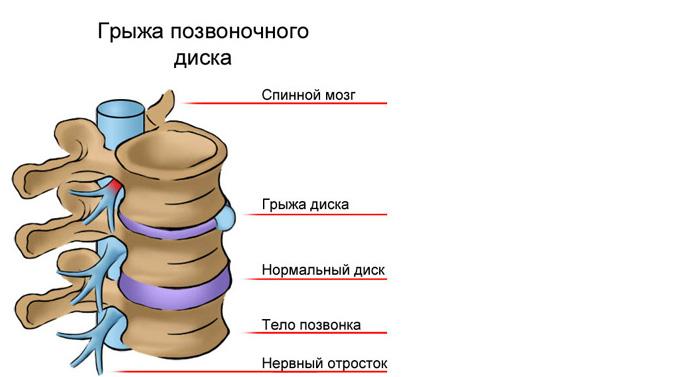 Грыжа в грудном отделе позвоночника