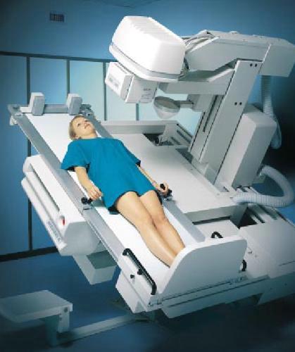 Рентгенография при кифозе