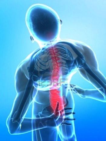 Боль в пояснице при остеохондрозе
