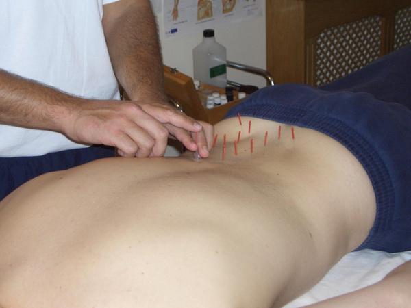 Акупунктура при остеохондрозе