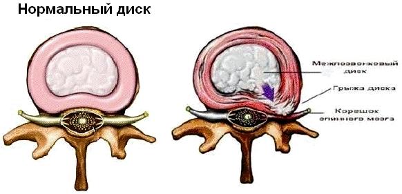 Грыжа шейного отдела позвоночника: причины симптомы и лечение