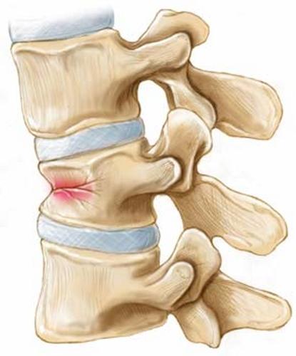 Повреждение позвонка при остеопорозе