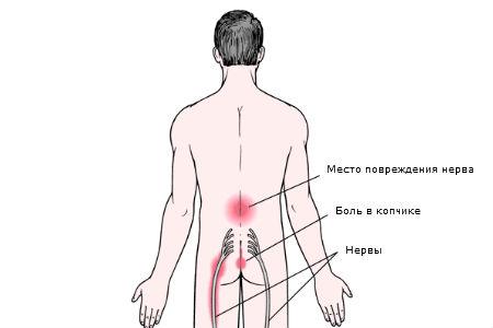 Хондроз поясничного отдела позвоночника: симптомы 85