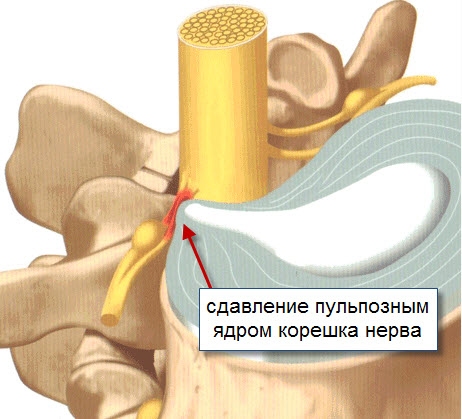 Сдавленный спинномозговой корешок
