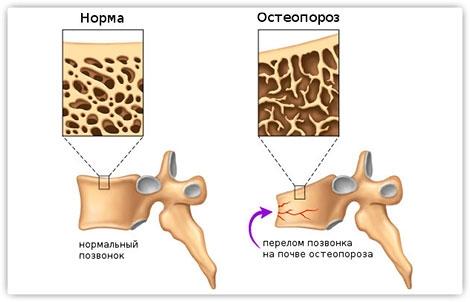 Симптом остеопороза - перелом позвонка