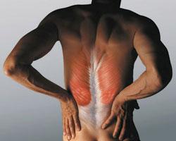 Спазмы мышц спины