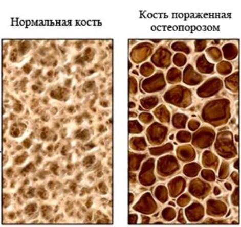 Сравнение кости нормальной и пораженной остеопорозом