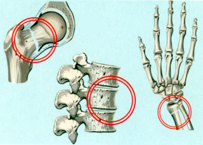Типичные переломы костей при остеопорозе