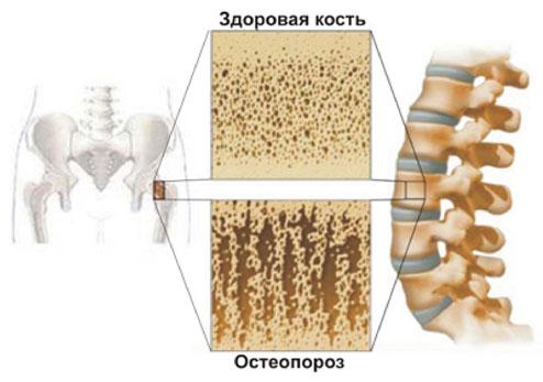 Здоровая кость и пораженная остеопорозом кость