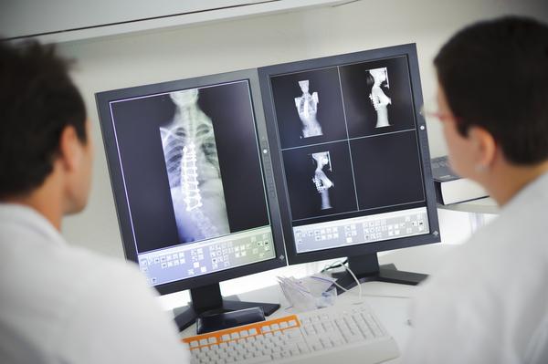 Диагностика грудного кифоза