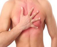 При межреберной невралгии болит в груди